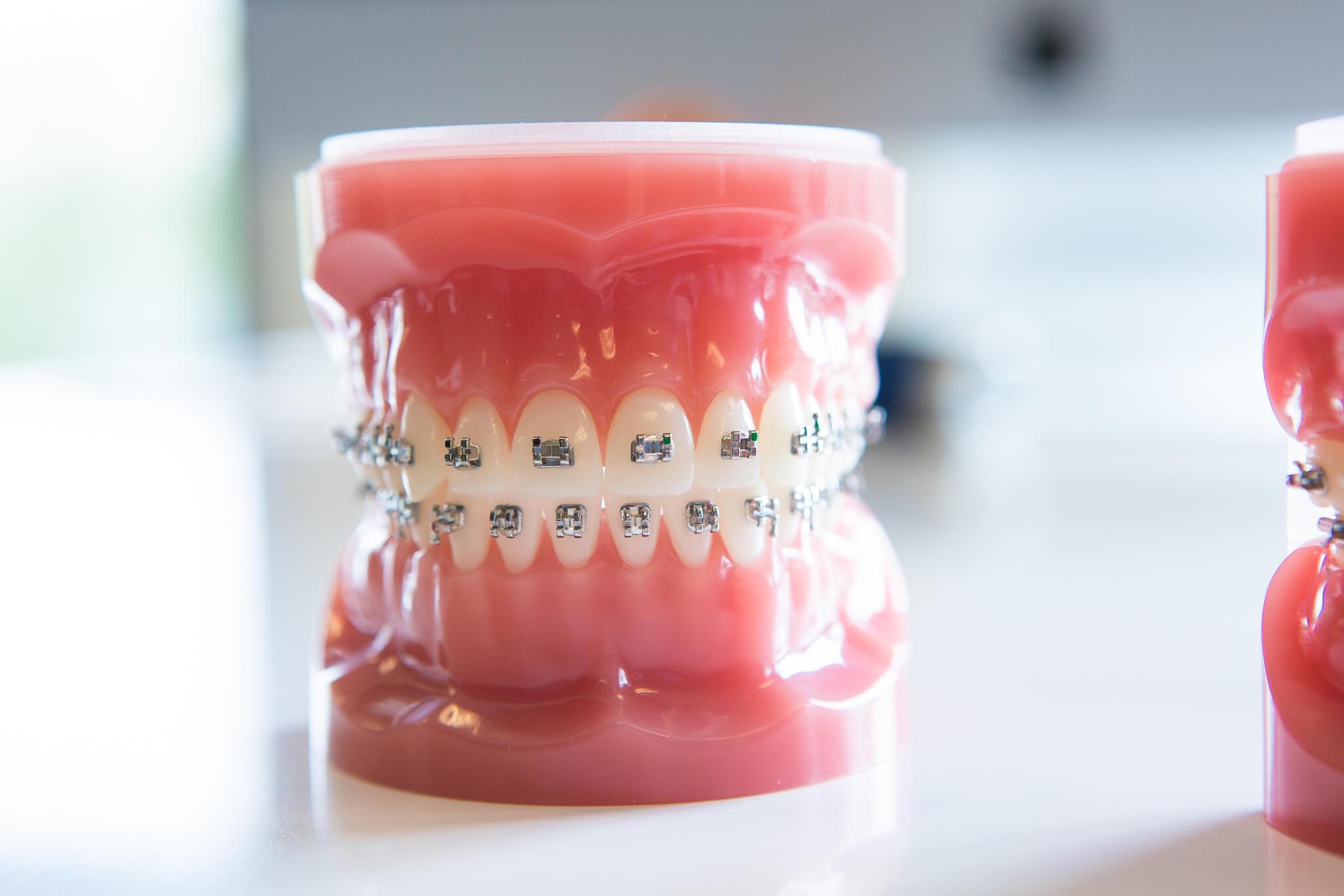 Ортодонтическое лечение в Новосибирске
